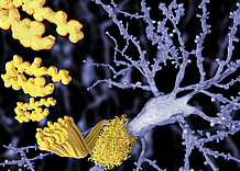Targeting Alzheimer's disease - studying the fibril structure of the Amyloid beta protein on a laboratory system